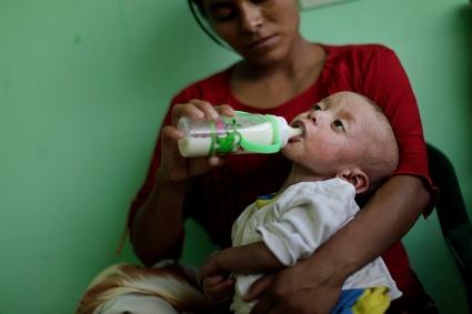 Guatemala Hunger